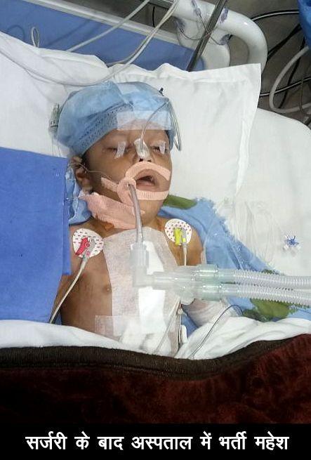 बच्चों की निशुल्क सर्जरी करवाने में कोटा जिला सबसे आगे