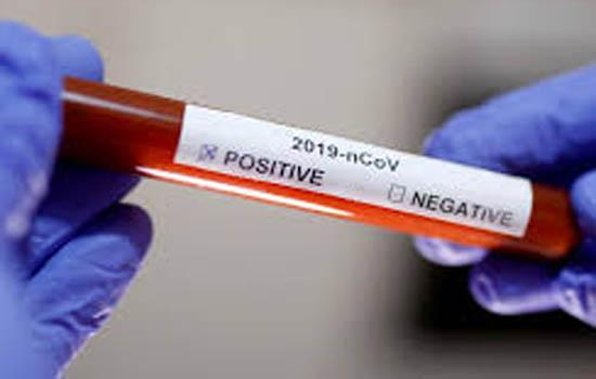 कोविड -19की रिकवरी दर 42.4 प्रतिशत मंगलवार को 1,16,041 नमूनों की जांच हुई